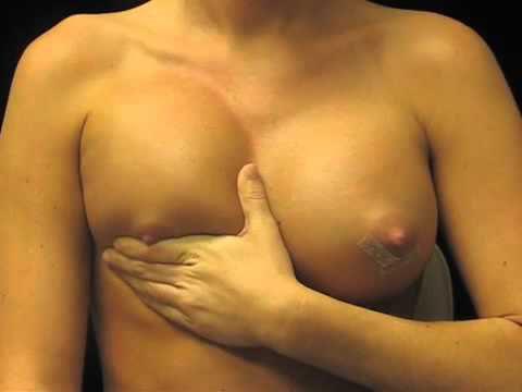 Breast Implant Massage